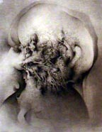Chervin etching
